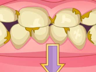 Bad Teeth Makeover game